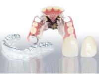 http://iishuusyoku.com/image/技工物には一つとして同じものはありません。患者さん一人ひとりに合わせ自然な使い心地で美しい技工物を作ることが求められます。